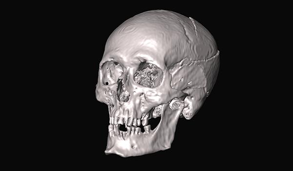 Pictish skull, forensic recreation