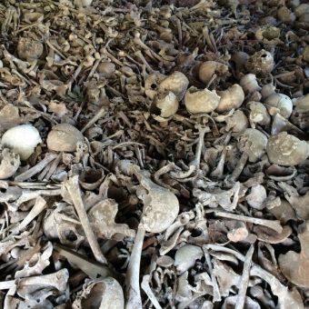 general photograph of bones