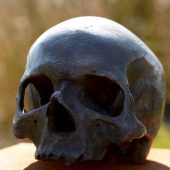Photograph of a human skull